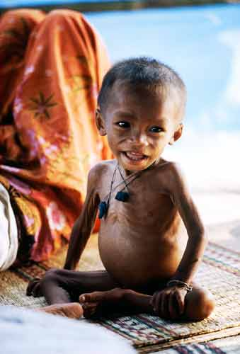 Problems linked to malnutrition - Humanium